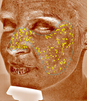 Digital Complexion Analysis Brown Spots