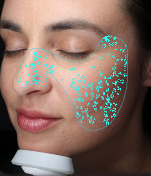 Digital Complexion Analysis Spots