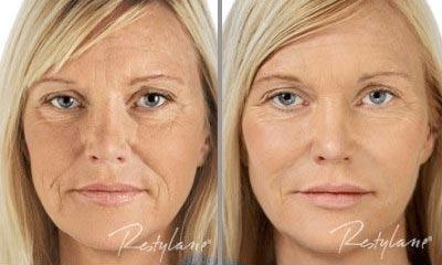 Radiant Eye Rejuvenation Before After 1