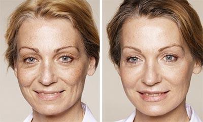 Radiant Eye Rejuvenation Before After 2