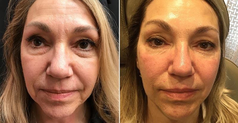 Radiant Eye Rejuvenation Before After 3