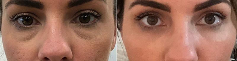 Radiant Eye Rejuvenation Before and After
