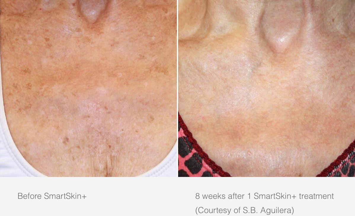 Cynosure Smartskin Before and After 1
