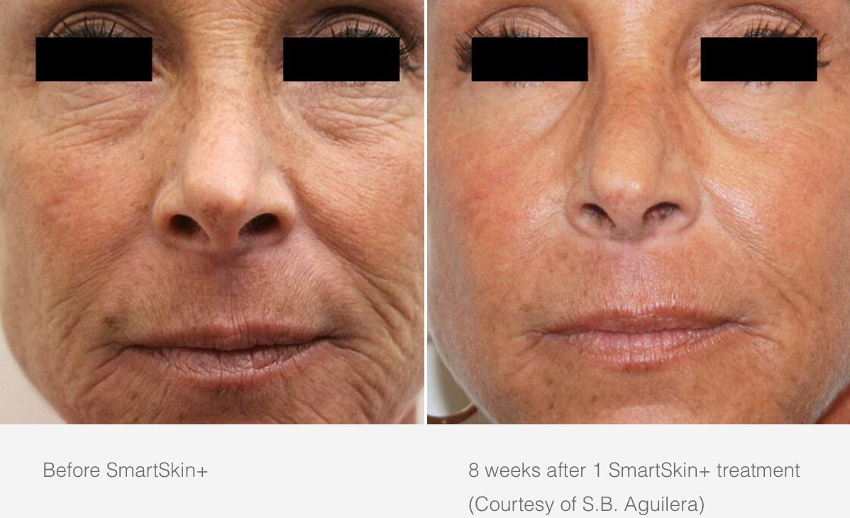Cynosure Smartskin Before and After 2